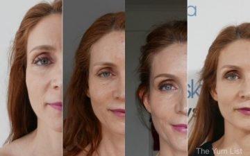 Vampire Facial KL Before & After Photos