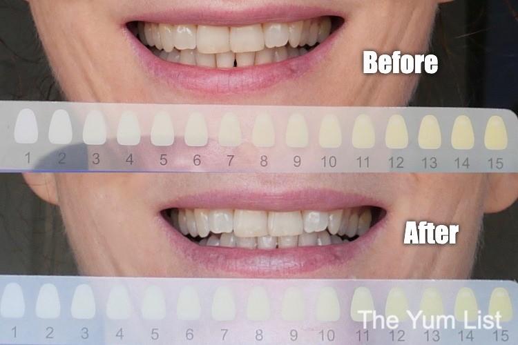 Home Teeth Whitening Malaysia